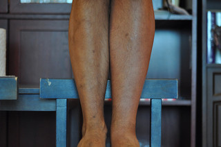 What are the Signs of Deep Vein Thrombosis?